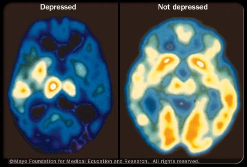 depression_s1_mayo
